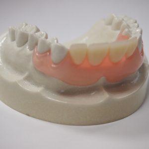 部分入れ歯(ノンクラスプデンチャー)